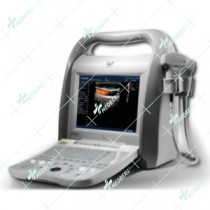 Colour Doppler Ultrasound Machine