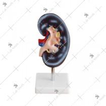 Kidney Model (1 Part)