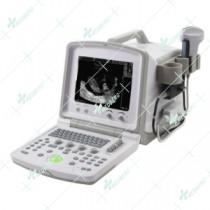 Doppler Ultrasound Scanner