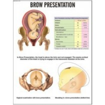 Brow Presentation Chart
