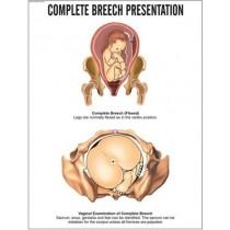Complete Breech Presentation Chart