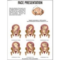 Face Presentation Chart