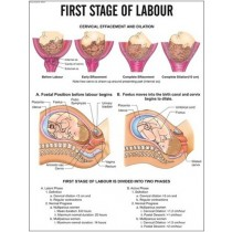 First Stage of labour Chart