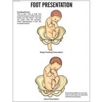 Foot Presentation Chart