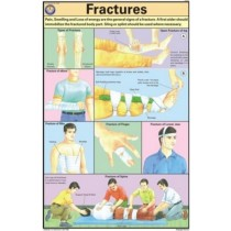 Fractures Chart