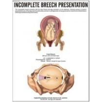 Incomplete Breech Presentation Chart