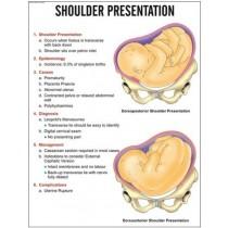 Shoulder Presentation Chart