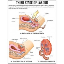 Third Stage of labour Chart