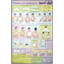 Triangular bandages Chart