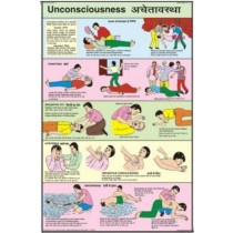 Unconsciousness Chart